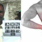 ರಾಯಚೂರಿನ 50% ಜನರಿಗೆ ಮೂತ್ರಪಿಂಡ ಸಮಸ್ಯೆ: ಬೇಸಿಗೆಯಲ್ಲಿ ಮತ್ತಷ್ಟು ಉಲ್ಬಣ